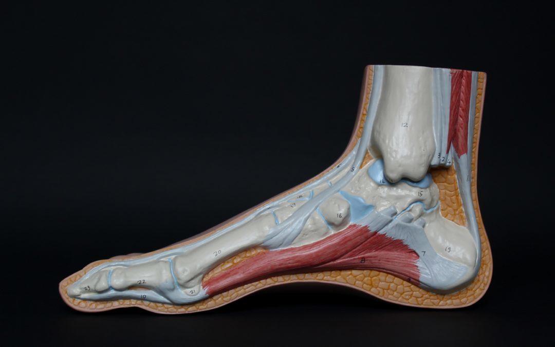 Disfunción del tendón tibial posterior: Introducción, causas y tratamiento.