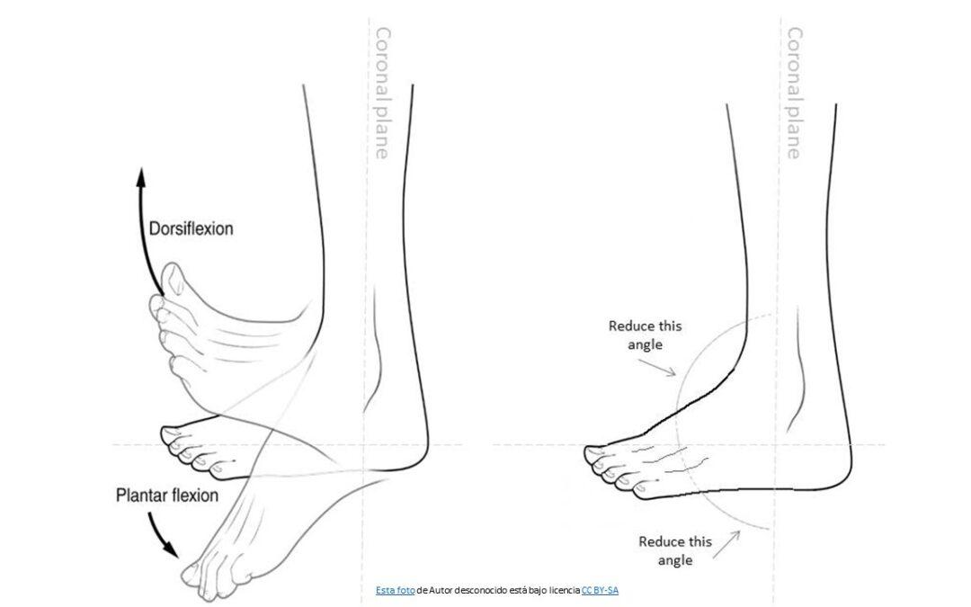 Importancia de la dorsiflexión de tobillo
