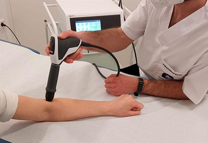 Ondas de choque en fisioterapia