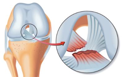 Rotura del ligamento cruzado anterior