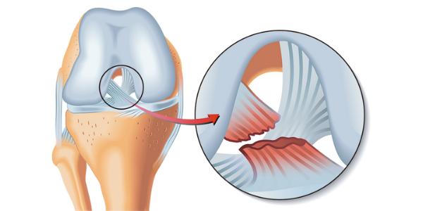 Rotura del ligamento cruzado anterior: tratamiento y rehabilitación